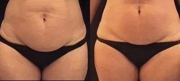Fotky před a po lymfodrenáži břicha