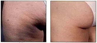 Lymfatická masáž hýždí. Fotky před a po lymfodrenáži