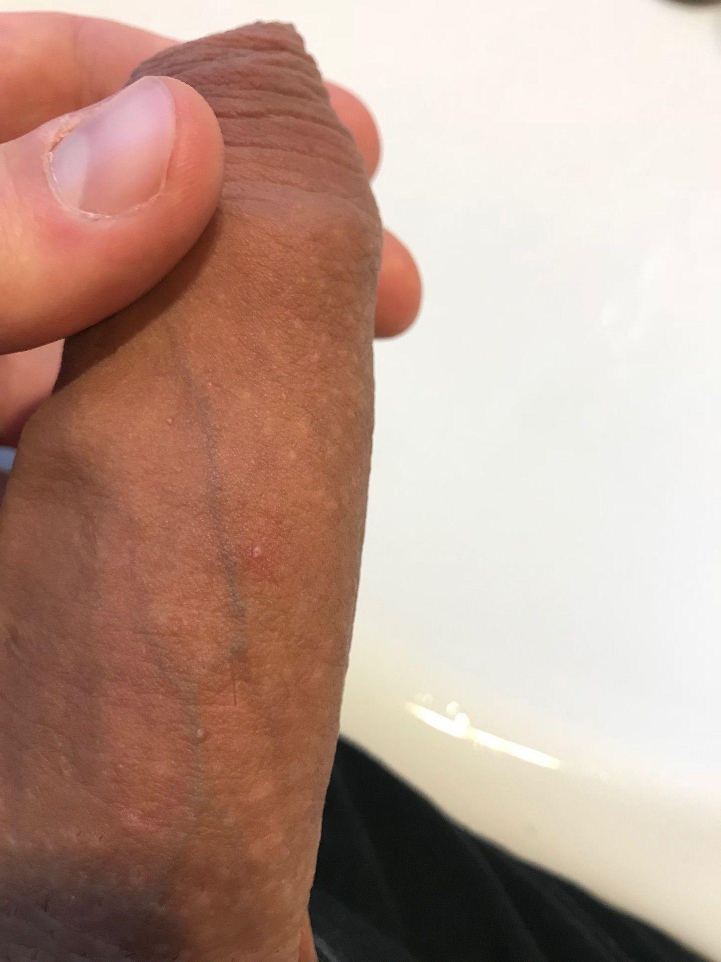 Fotky penisu