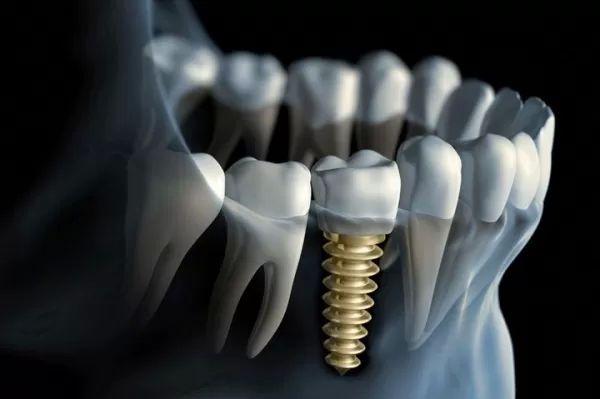 1 Implantáty