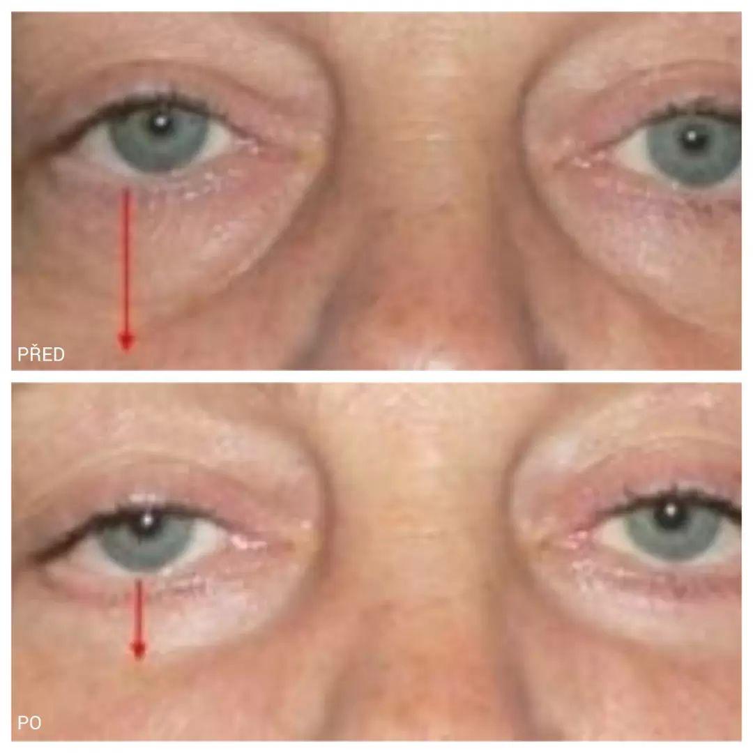 fotky před a po operaci dolních víček