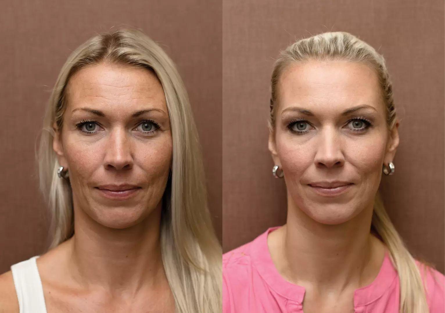 Fotky před a po zákroku estetické dermatologie: chemicky peeling, skinbooster, plasmaterapie, botolutoxin