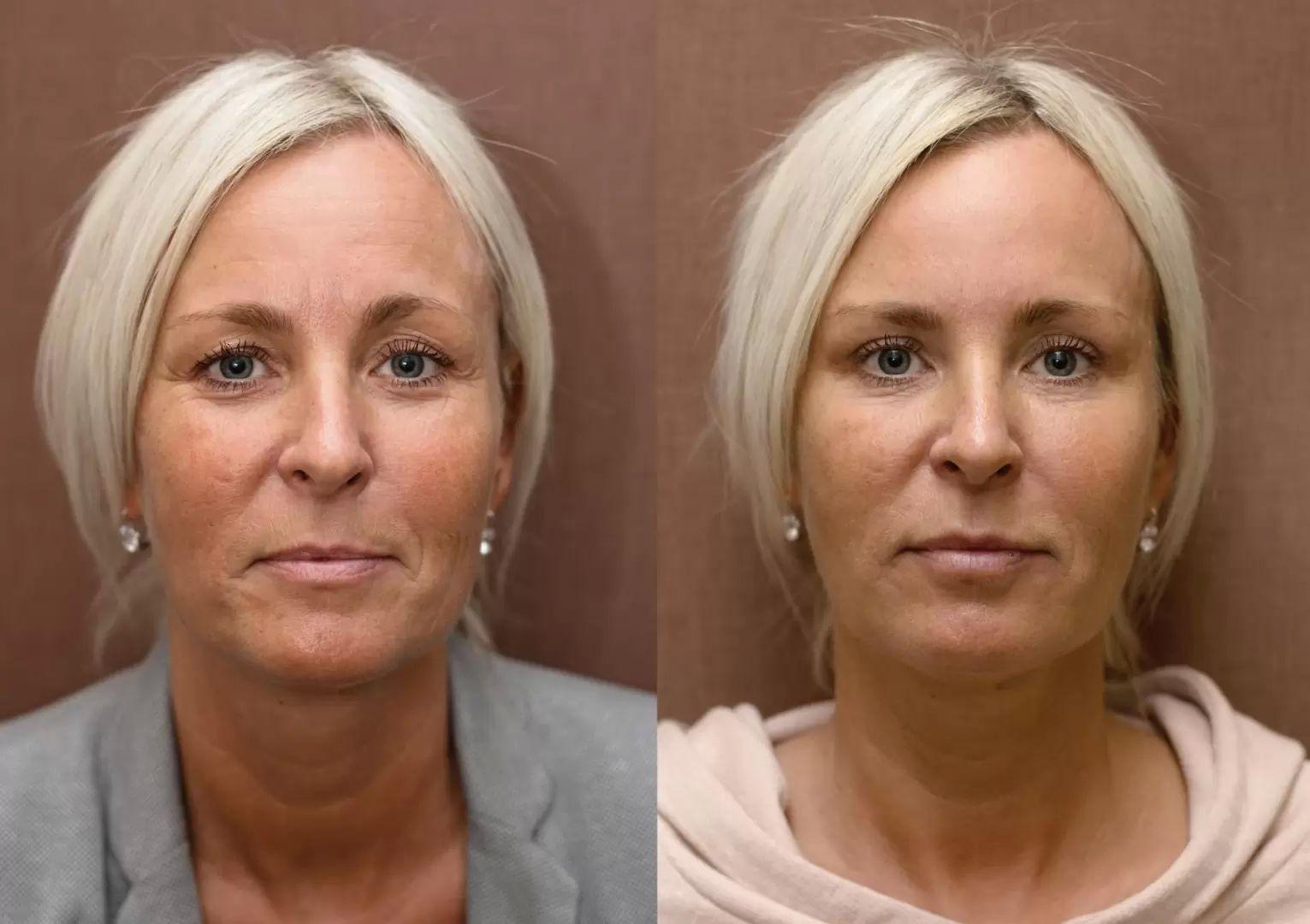 aplikace botulotoxinu, fotky před a po odstranění vrásek na čele
