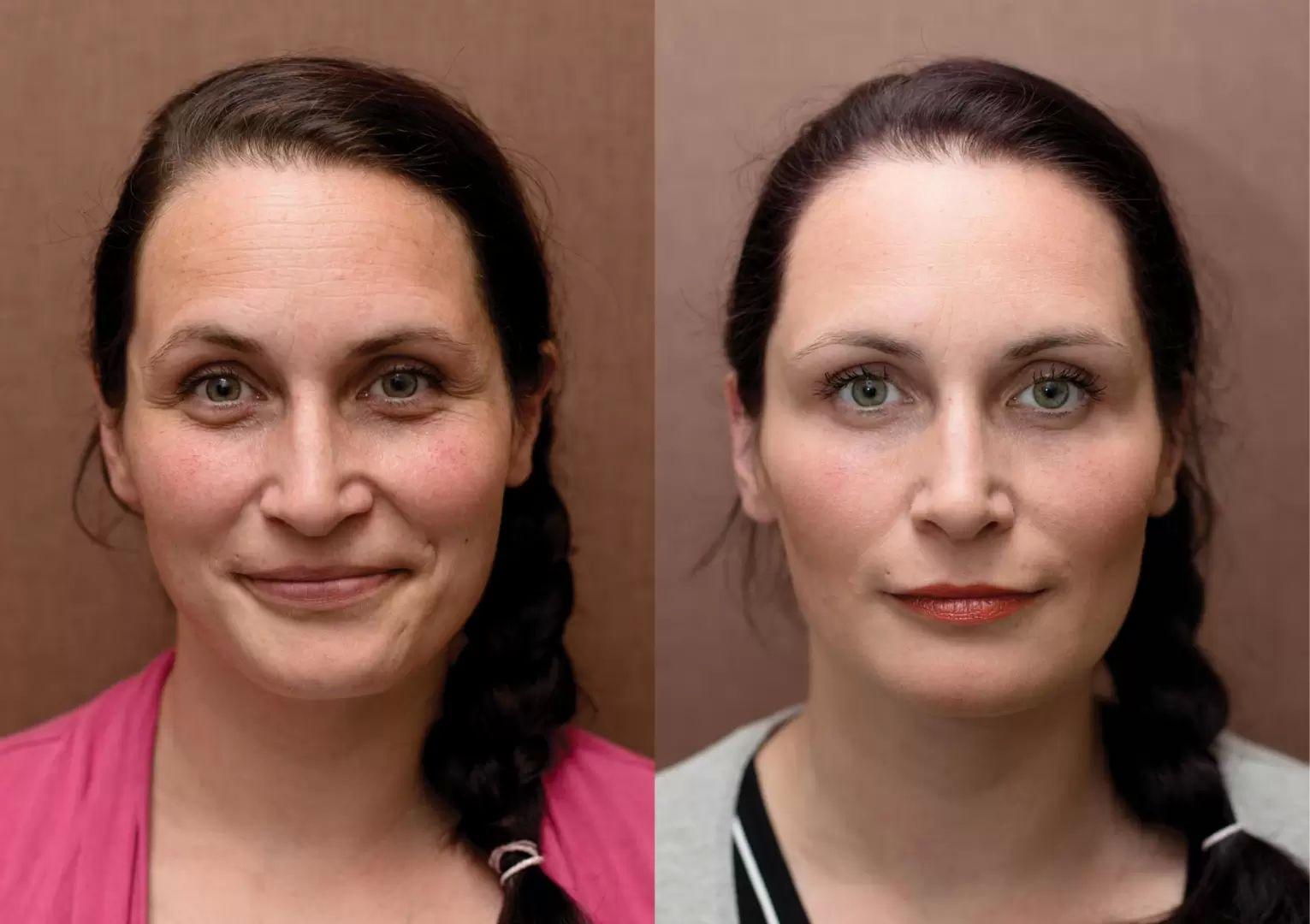 fotky před a po odstranění vrásek kyselinou hyaluronovou