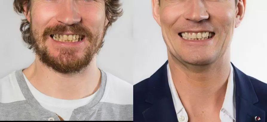 kazy na prednich zubech