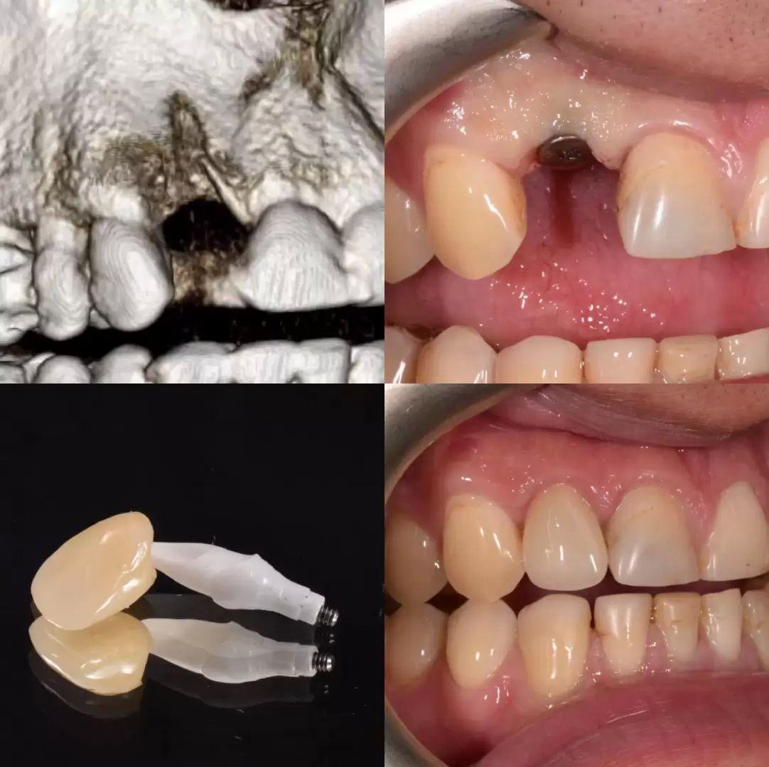 zubni implantaty 2