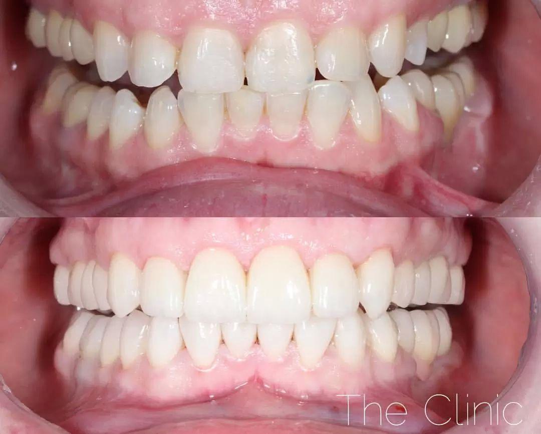 zubni implantaty 3