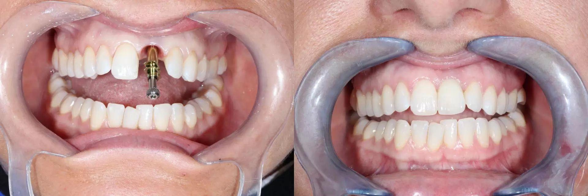 zubni implantaty 5