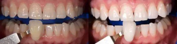 beleni zubu 1