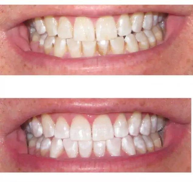 beleni zubu 2