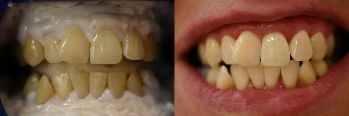 beleni zubu 4