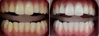 beleni zubu 6