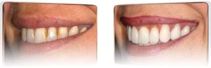 beleni zubu 7