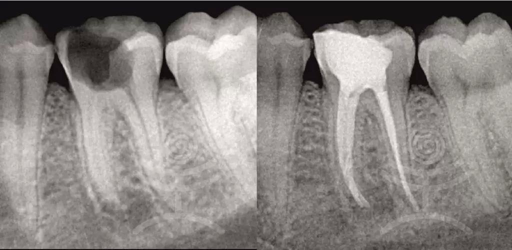 endodoncie 1