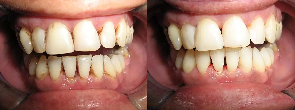 dentalni hygiena 2