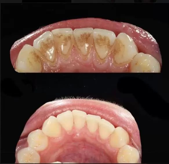 dentalni hygiena 3