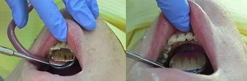 dentalni hygiena 5