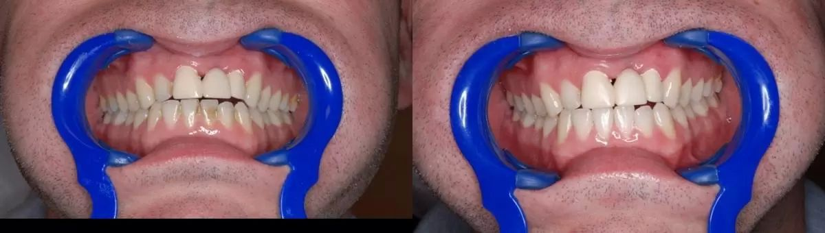 dentalni hygiena 7