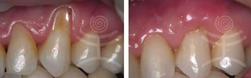 parodontoza4