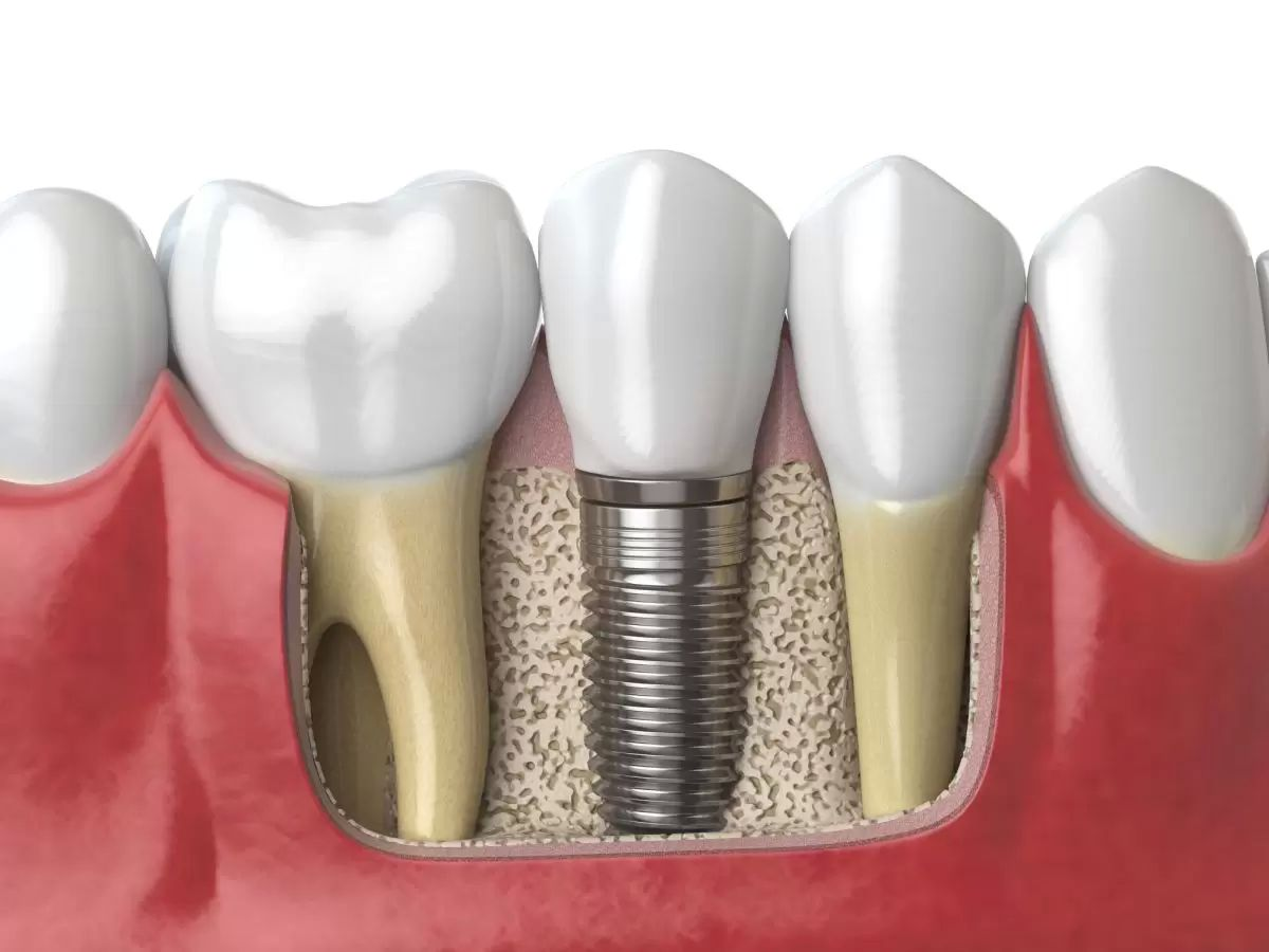 zubni implantaty istock small