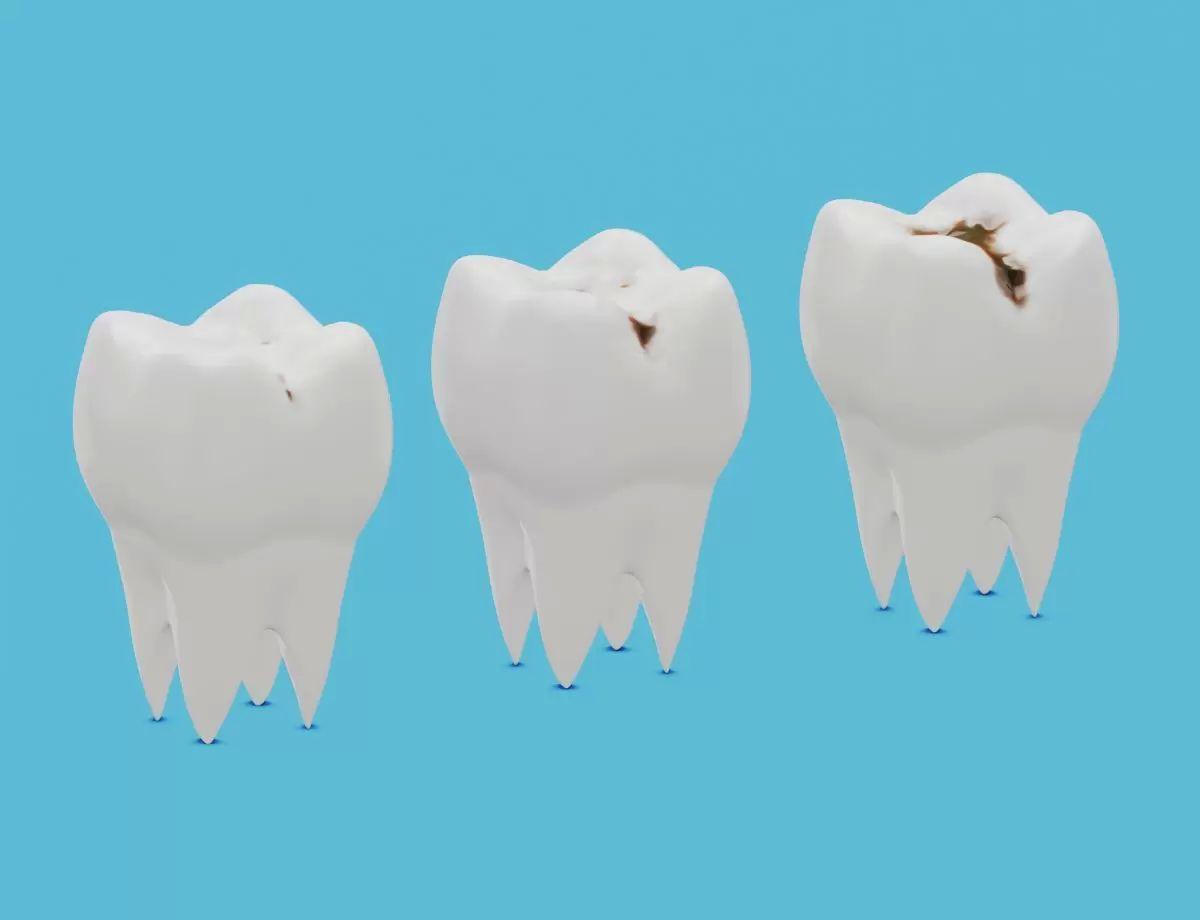 zubni kaz istock small