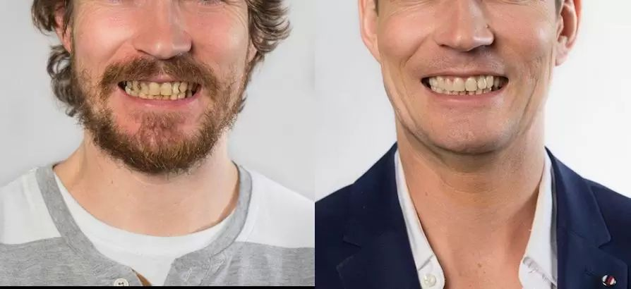 zubni vyplne2