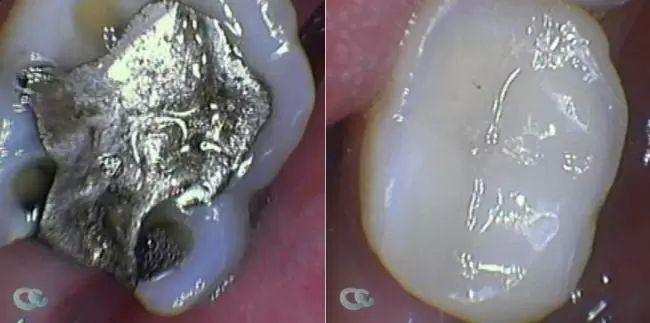 zubni vyplne4