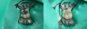 zubni vyplne6