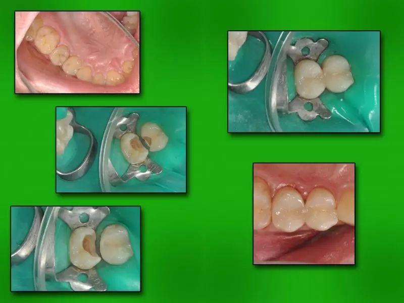 zubni vyplne7