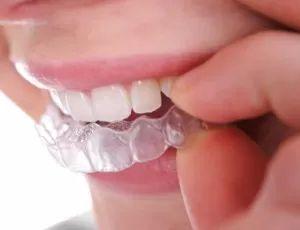 ortodoncie esthedent