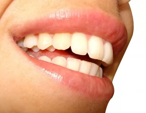 zuby usmev zubar