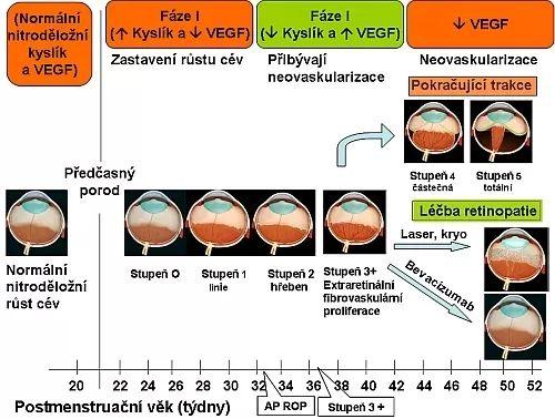 schéma patogeneze a therapie