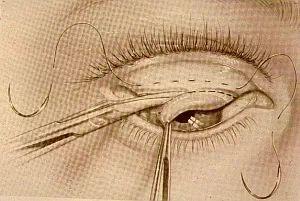 operace ptózy   zkrácení tarsální chrupavky