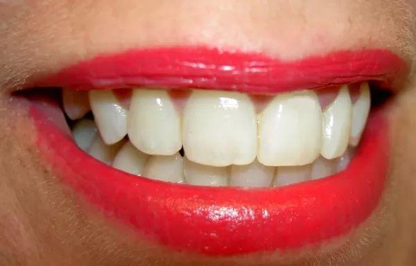 zuby implantáty chrup