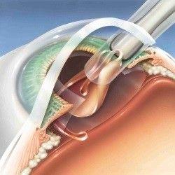 implantace cocky1