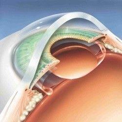 Implantace cocky2