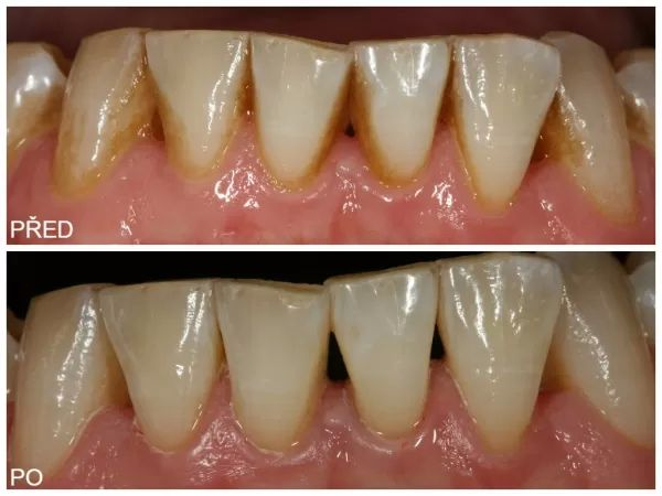 odstranění zubního kamene