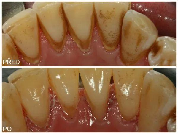 ošetření zubního kamene 2