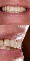 RB Dent - centrum komplexní stomatologie - Náhrada zubu pomocí zubního implantátu, před a po implantaci zubní náhrady.  Archiv: RB dent Liberec - MUDr. Richard Benko