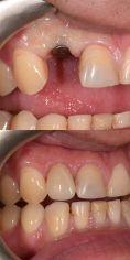 Zubní implantáty - fotka před