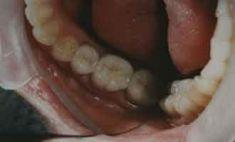 Zubní výplně (záchovná stomatologie) - fotka před - Jana Navrátilová Dr.med. dent