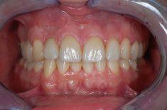 Zubní miniimplantáty - Pacient ročník 74 po selhání endodoncie zubu 12, Dále byl pacient nespokojen s estetikou resp. mezerami chrupu Řešení: implantáty zuby 15 a 12 a keramické fasety v zozsahu 11, 21, 22