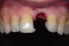 PŠTROSSOVA Medical Centrum - Pacient  ročník 197, stav po extrakci zubu 21 pro endodontické selhání  Řešení: implantace do místa 21 s augmentací kosti a měkkých tkání a po vytvarování dásně do tvaru lůžka zubu celokeramická korunka