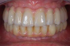 PŠTROSSOVA MEDICAL CENTRUM - pacient  ročník 1946, pacient přichází s totálním selháním chrupu pro parodontózu   Řešení: po postupných extrakcích všech zubů Hč a provizorním můstku na dobu hojení implantace 8 miplantátů a v Dč okamžitá implantace 5 implantátů. Po zhojení fixní šroubovaná rekonstrukce chrupu