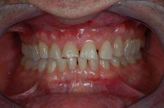 PŠTROSSOVA Medical Centrum - pacient  ročník 1963, nespokojen s funkcí a hlavně estetikou frontálních zubů  Řešení: předléčení rovnátky, pro lepší pozice zubů a otevření skusu ve frontální oblasti. pak celokeramické fasety v rozsahu 13-23 a obnova špičákového vedení