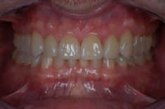 Ortodoncie - fotka před