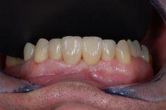 PŠTROSSOVA MEDICAL CENTRUM - pacient  ročník 1961, nespokojen s funkcí a hlavně estetikou frontálních zubů  Řešení: celokeramický most v rozsahu 12-22