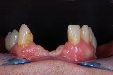 PŠTROSSOVA MEDICAL CENTRUM - pacient  ročník 1953, pacient po neúspěšné léčbě implantáty z předchozího pracoviště a dlouholetém nošení snímací protetiky nespokojen s funkcí a hlavně estetikou frontálních zubů  Řešení: celokeramický most v rozsahu 13-23 s použitím růžové keramiky pro doplnění defektu tkání