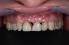 PŠTROSSOVA MEDICAL CENTRUM - pacient  ročník 1965, nespokojen s funkcí a hlavně estetikou frontálních zubů  stav po extrakci zubu 21  Řešení: po doplnění měkkých tkání v oblasti zubu 21 pojivovým štěpem z patra z důvodu lepší estetiky finálního mostu celokeramický most v rozsahu 12-22