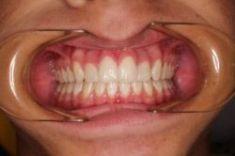 Ortodoncie - fotka před - MUDr. Petr Vinš